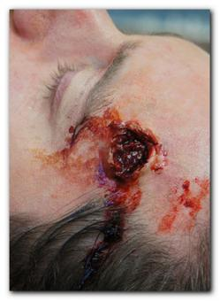 Exit wound (SMALL)
